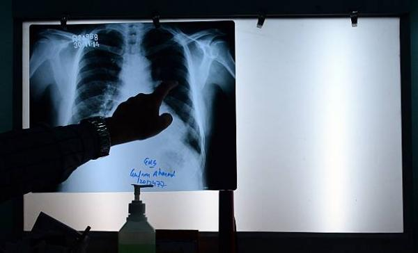 Brahm Mohindra announces free chest X-ray facility for TB patients