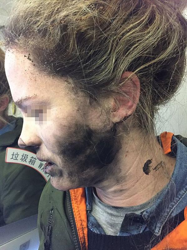 Woman's face burned after her headphone batteries exploded mid-flight